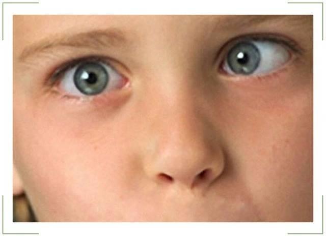 Амблиопия у детей, лечение синдрома ленивого глаза в домашних условиях
