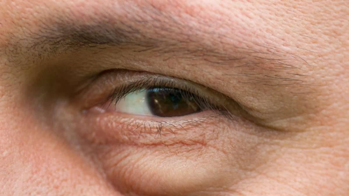 Мешки под глазами у мужчин причины, как убрать в домашних условиях
