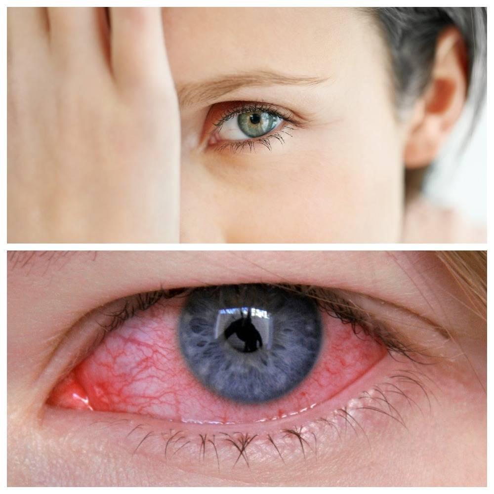Причины и лечение краевого кератита глаза