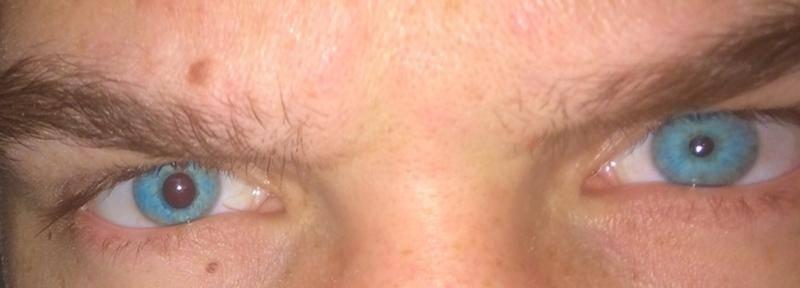 Глаз плохо видит после ушиба