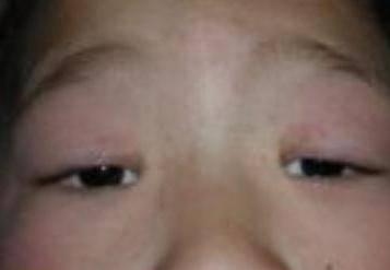 Ангулярный блефарит: симптомы, диагностика и способы лечения — глаза эксперт