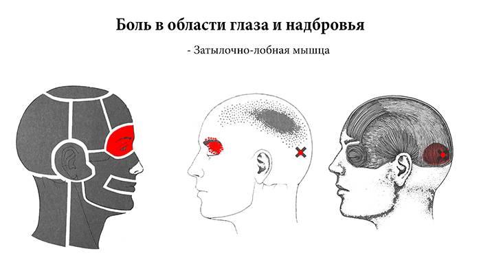 Болит голова в области левой брови и глаза