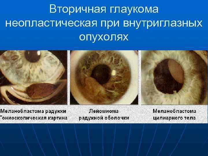 Вторичная глаукома - неоваскулярная и увеальная, причины и лечение, имеется ли возможность восстановить зрение