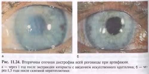 Эндотелиальная дистрофия роговицы, симптомы, профилактика, лечение.