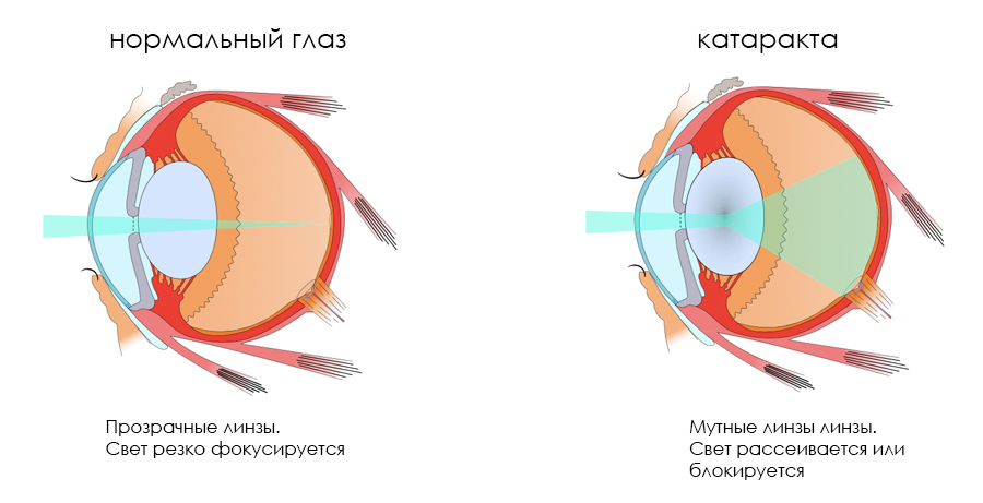Почему после замены хрусталика глаз видит мутно и как с этим бороться?