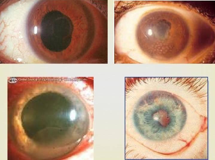 Симпатическая офтальмия: причины возникновения, симптомы и способы лечения