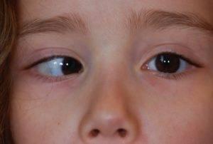 Лечение нистагма у детей — клиника офтальмологии «мигдаль» в израиле