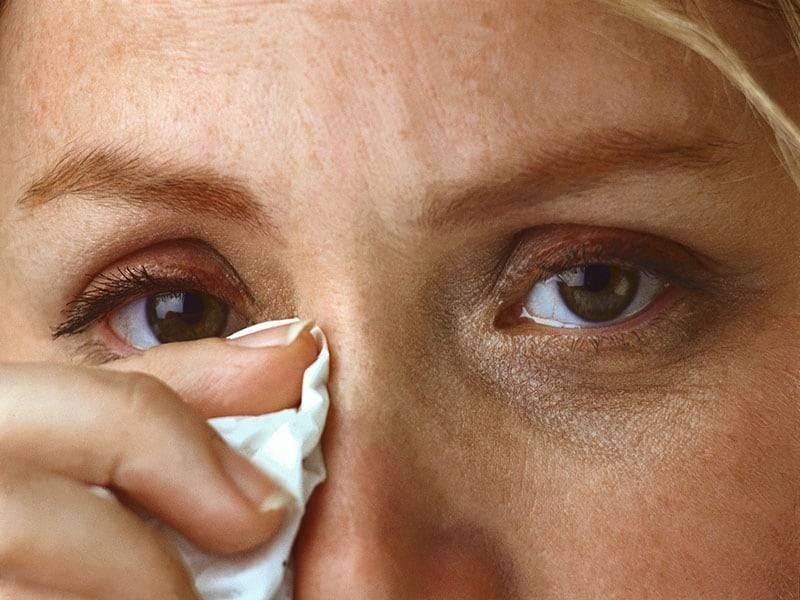 Насморк, слезятся глаза, чихание при простуде: что делать и чем лечить