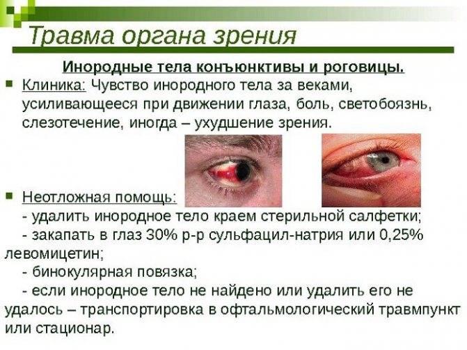 """Почему чешутся глаза: причины и лечение - """"здоровое око"""""""