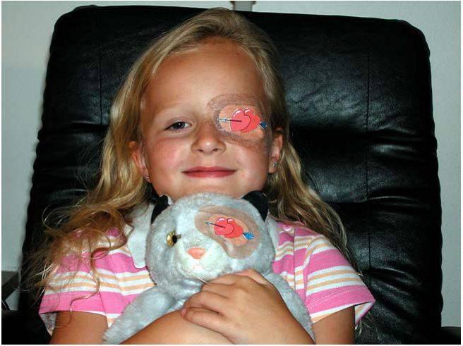 Ретинобластома глаза у детей и взрослых: что это такое, причины развития, симптомы и признаки начальной стадии, прогноз
