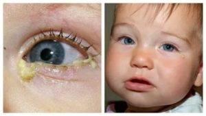 Причины гноящихся глаз у детей