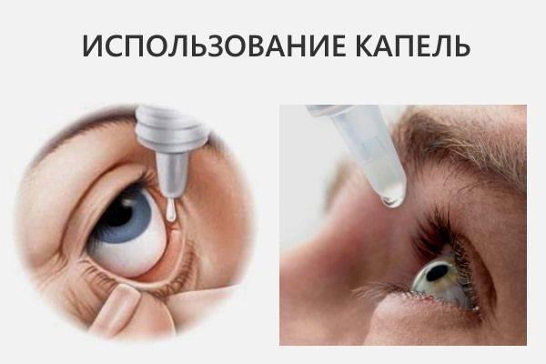 Основные методы снижения глазного давления