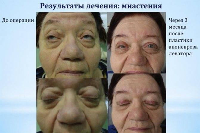 Миопатия - что это такое: причины, симптомы и лечение