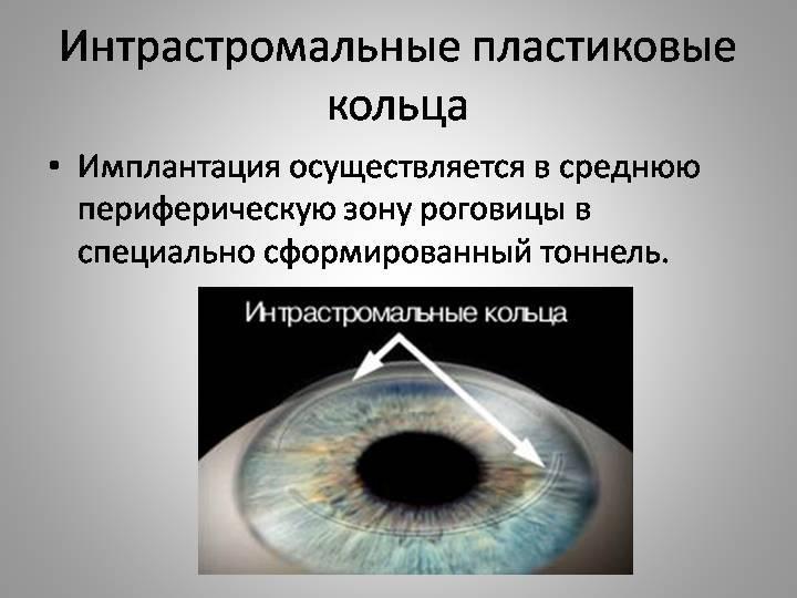 Имплантация роговичных сегментов   мнтк «микрохирургия глаза» им. акад. с.н. федорова