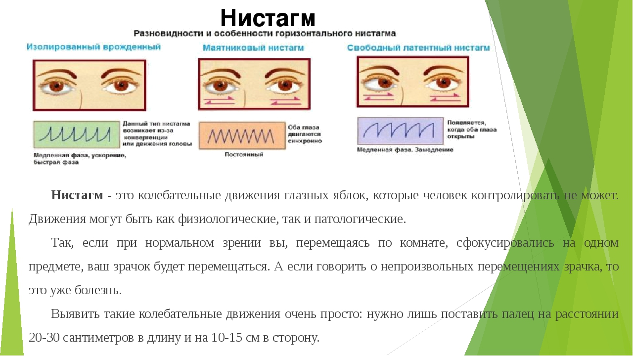 Нистагм глаз: что это такое, симптомы и лечение, причины и виды