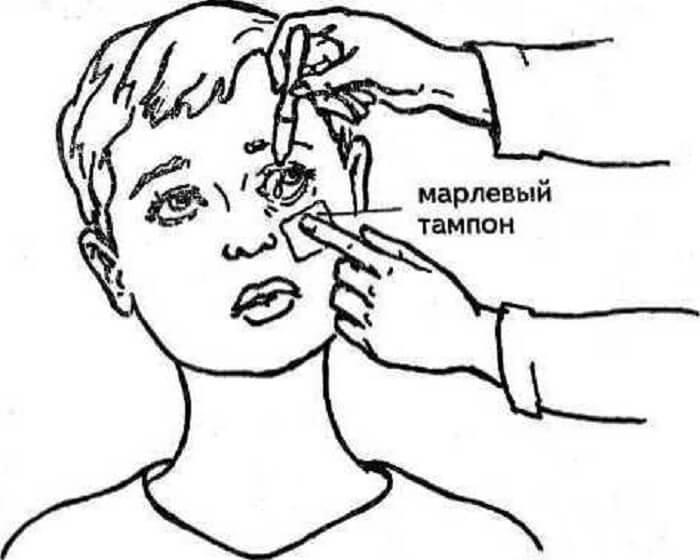 Как закапать глаза ребенку, если он жмурится, чем капать
