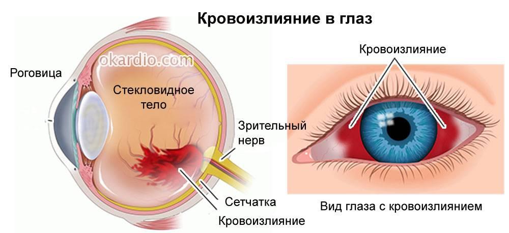 Болят глазные яблоки: возможные причины