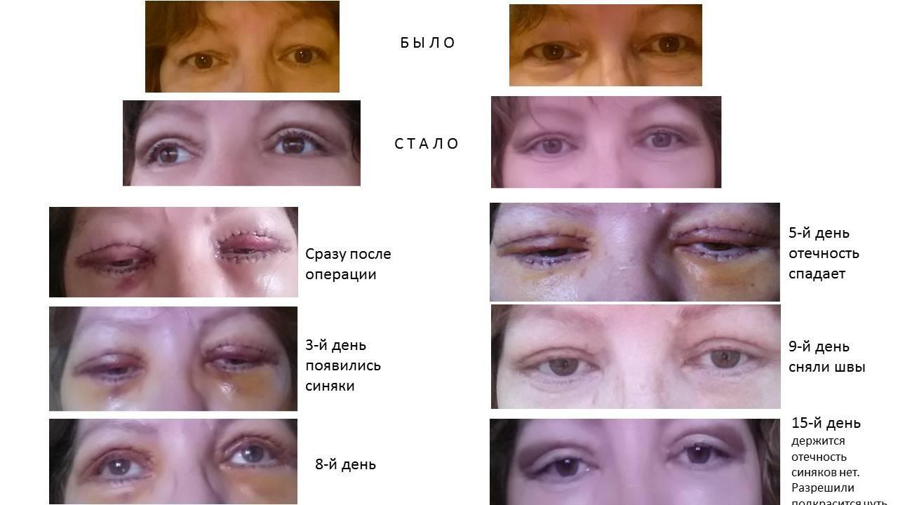 За сколько пройдет фингал под глазом – лечение артроза и артрита, лечение подагры