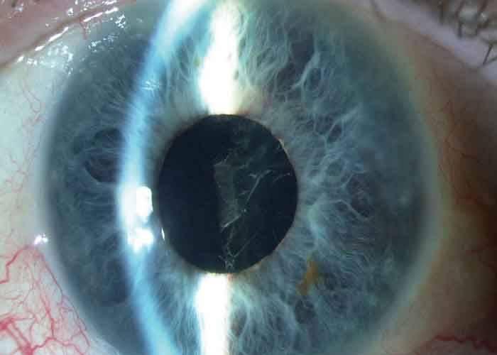 Вторичная пленчатая катаракта и фиброз задней капсулы хрусталика