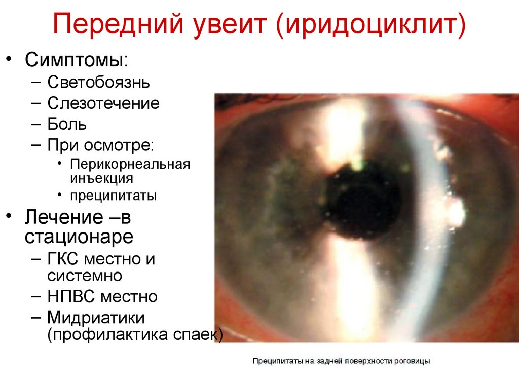 Увеит глаза: причины, симптомы, лечение,  лечение народными средствами