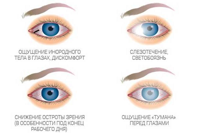 Синдром сухого глаза: симптомы и лечение, капли для глаз - medside.ru