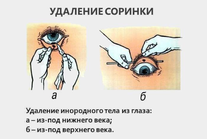 Инородное тело в глазу — ощущение, попадание, удаление