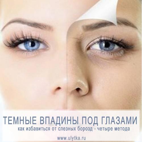 Кремы не помогут: как убрать впадины под глазами