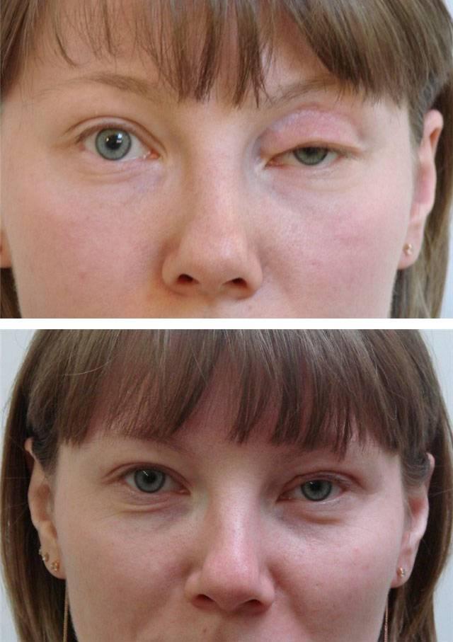 Блефароспазм: причины, симптомы, диагностика, лечение | компетентно о здоровье на ilive