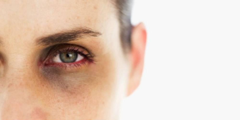 Проблемы с кожей вокруг глаз: тёмные круги