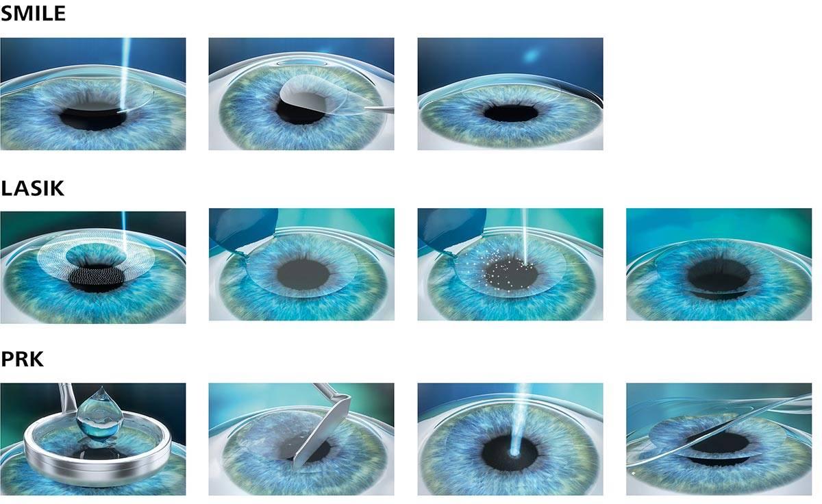 Эпи ласик: показания, ход операции и период восстановления, результаты