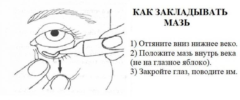 Оказание первой помощи при травмах глаз: основные правила