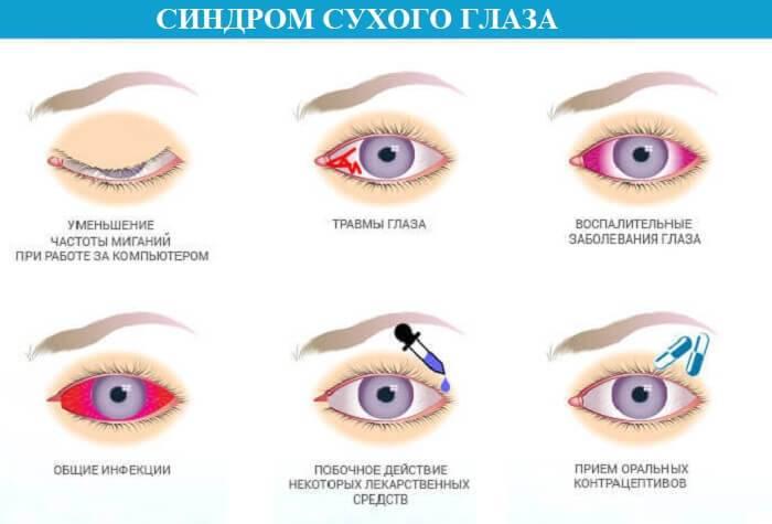 Синдром сухого глаза, что это такое и как лечить?