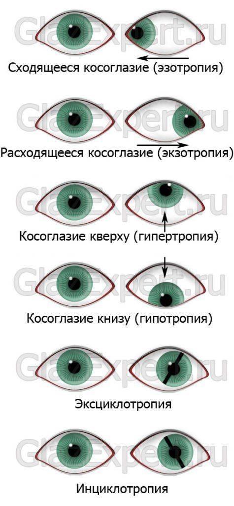"""Операция по исправлению косоглазия: показания - """"здоровое око"""""""