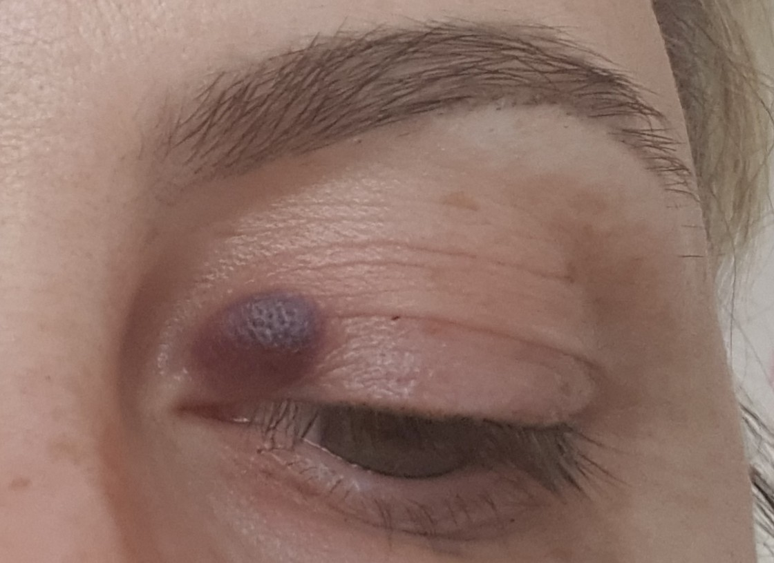 Появился синяк под глазом без удара - медицинский справочник medana-st.ru