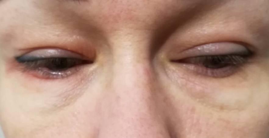 Краснота и шелушение вокруг глаз — что поможет?