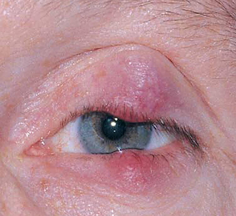 Хронический блефарит: симптомы и лечение обоих глаз