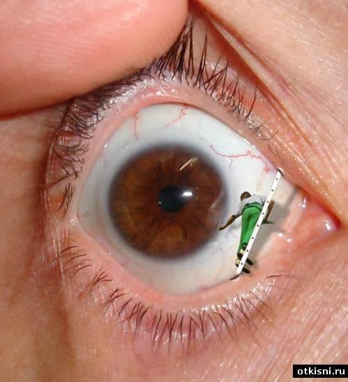 Что делать в домашних условиях если попала в глаз стружка, искра или крошка от болгарки?