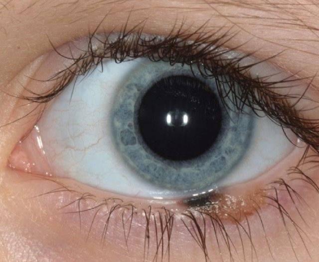 Невус. причины, симптомы, признаки, диагностика и лечение патологии :: polismed.com