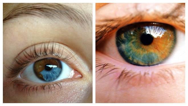 Разный цвет глаз: все знания о гетерохромии