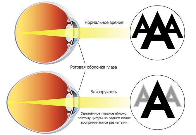 Прогрессирующая миопия (близорукость): как остановить и вылечить