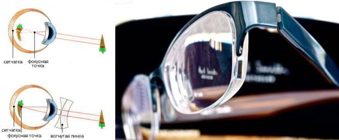 Как выбрать линзы для очков при близорукости: советы офтальмолога