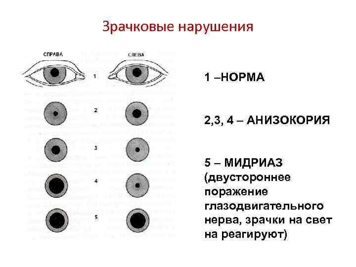 Светобоязнь глаз: причины возникновения, симптомы, лечение