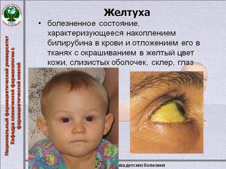 Желтуха у новорожденных: признаки, лечение, когда должна пройти