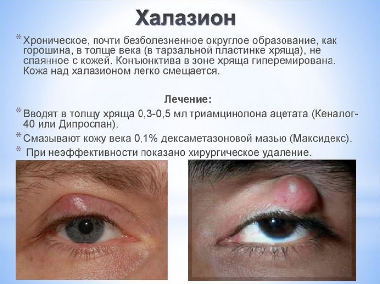 Мейбомит: лечение на нижнем и верхнем веке глаза, причины, симптомы хронического и острого