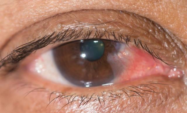 """Острый конъюнктивит: симптомы и лечение - """"здоровое око"""""""