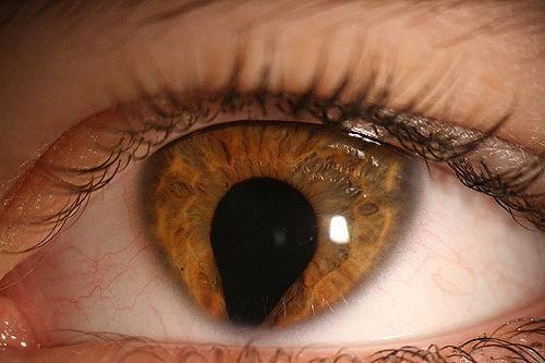 Пятно на белке глаза: причины, симптомы, лечение