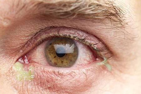 Конъюнктивит: фото, симптомы и лечение у взрослых в домашних условиях