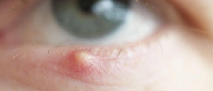 Что делать если постоянно появляются ячмени: причины выскакивания и лечение