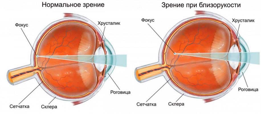 Резкое помутнение в глазах - 12 причин | пугающие симптомы