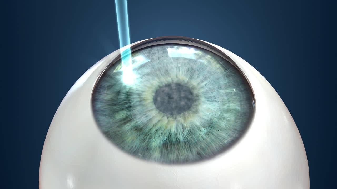 Со скольки лет можно делать лазерную коррекцию близорукости